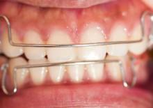 Дуги ортодонтические