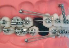 Винты ортодонтические