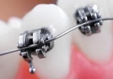 Замки ортодонтические